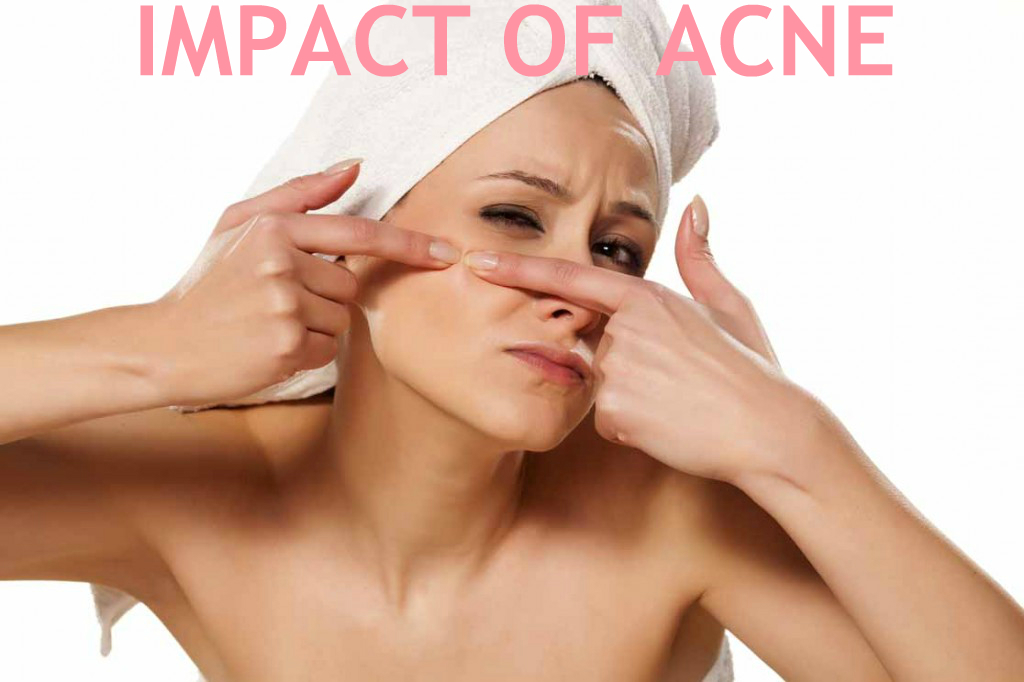 The Emotional Impact of Acne on a person's everyday life – My acne story – My Skin Care Routine